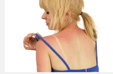 Phototoxische Kontaktekzem ähnelt Sonnenbrand